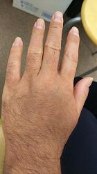 アトピー施術後の左手の甲写真
